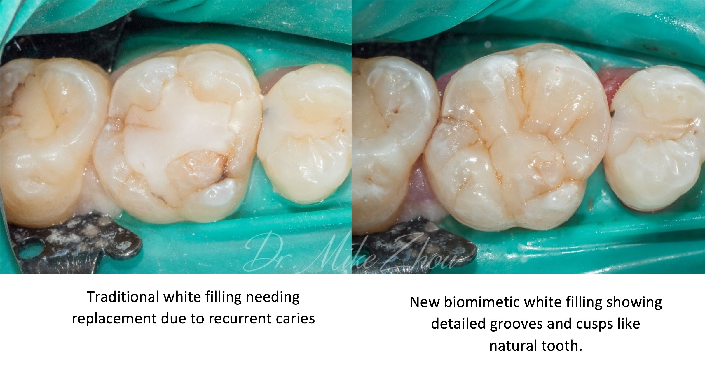 Biomimetic Dentistry