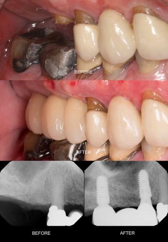 Implant-4